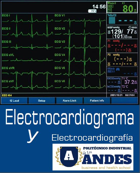 Electrocardiograma - Interpretación y Principales Patologías